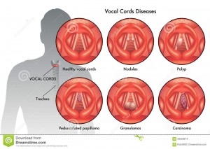 http://www.dreamstime.com/stock-images-vocal-cord-diseases-medical-illustration-image59500674